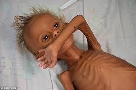 Yemen'deki Savaşın Çirkin Yüzü! Çatışmaların Ortasında Açlıktan Ölmek Üzere  Bir Çocuk - onedio.com